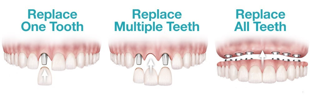 Dental Replacements