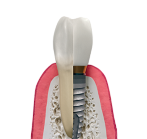 single-multipleteeth