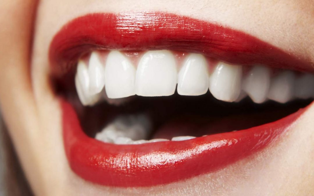 Why you should consider porcelain veneers to enhance your smile