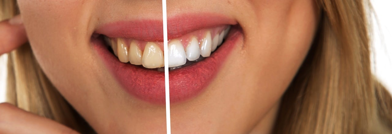 17 Struggles People With Bad Teeth Know To Be True