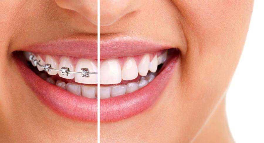 whats cheaper braces or Invisalign
