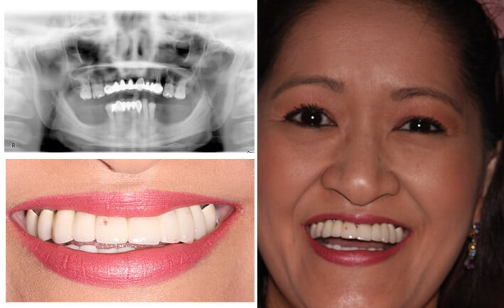 How To Properly Maintain All-On-4 Dental Implants Courtesy Of Prosmiles